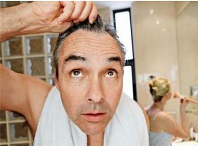 中老年男士白发越来越多,但染发的人越来越少图3
